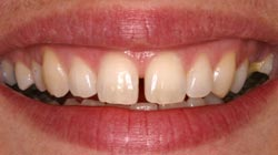 Cosmetic Dentistry Berkeley Smile Design Before