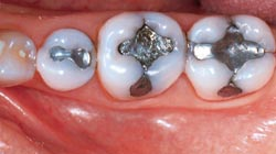 Berkeley DDS Porcelain Fillings Before