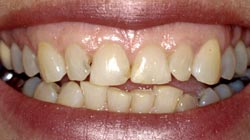 Berkeley Dental Care Full Mouth Restoration Before