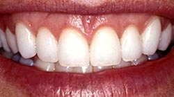 Instant Orthodontics After