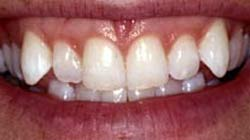 Berkeley Dental Instant Orthodontics Before